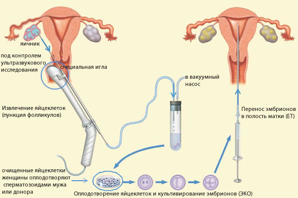 Искусственная инсеминация спермой мужа или донора