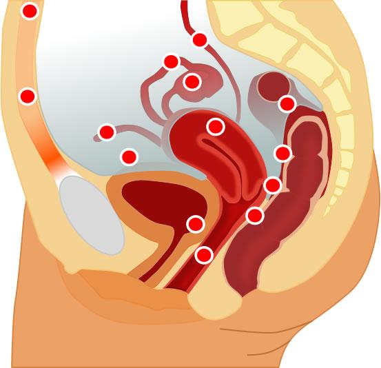 Endometrioosi levinuimad esinemiskohad