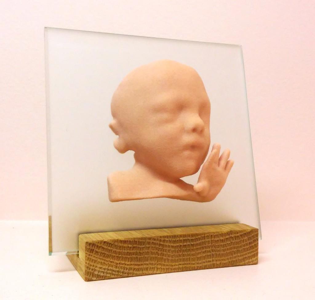 3D-4D ultraheli pildi järgi valmistatud 3D kujuke 2